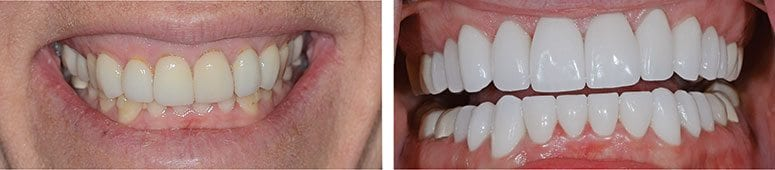 10 Upper and 10 Lower CEREC Crowns