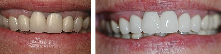 CEREC Crowns on Uppers and Full Mouth Teeth Whitening