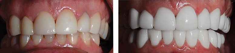 Full Mouth of CEREC Crowns Before and After