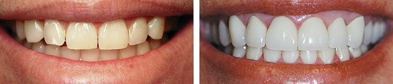 Full Mouth of CEREC Veneers