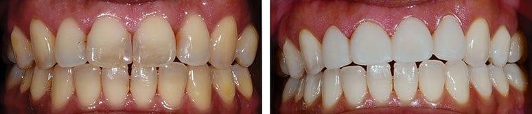 Veneers and Teeth Whitening