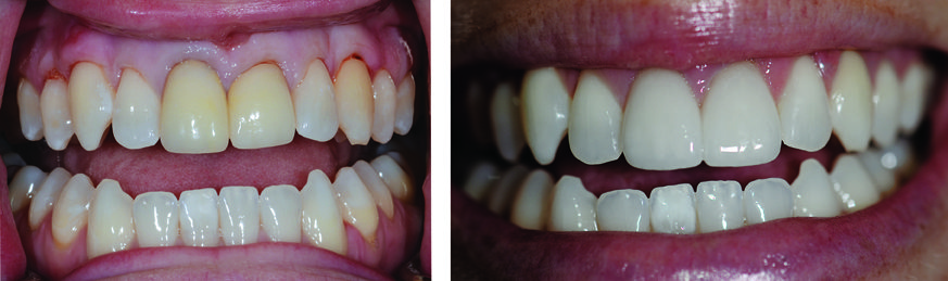 Yellowing Teeth Have a Great, New Healthy Look with Teeth Whitening and Two Front Teeth Veneers