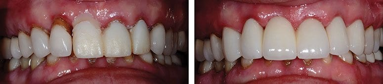 Tooth Extraction and Replacement with CEREC Crowns and a Bridge