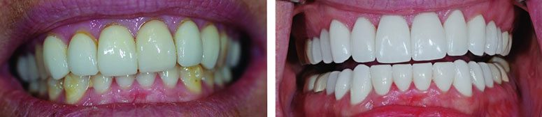 CEREC Crowns Before and After Photo