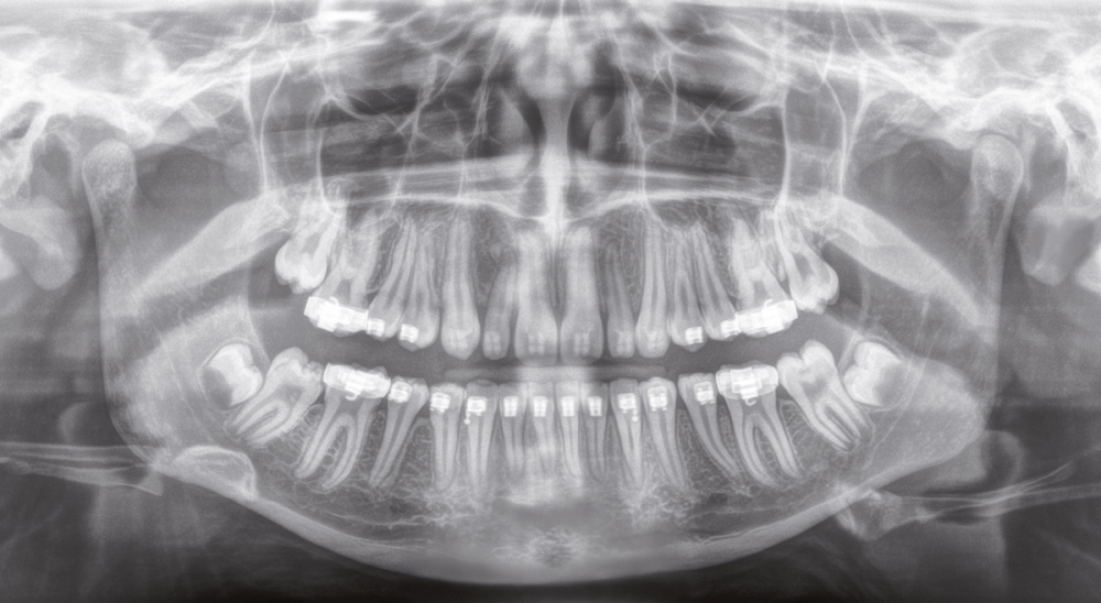 Orthophos SL 2D 3D xray low dose imaging dental implants