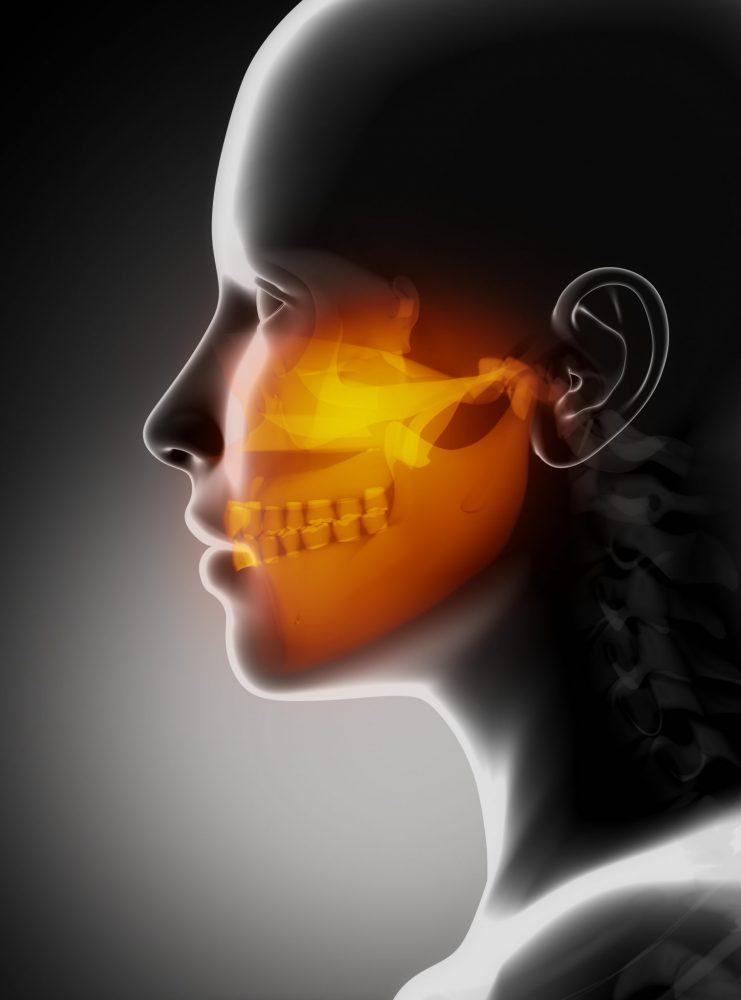 Temporomandibular (TMJ) Jaw Pain
