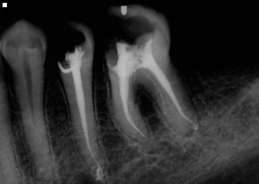 after root canal is completed on two teeth as seen in digital x ray