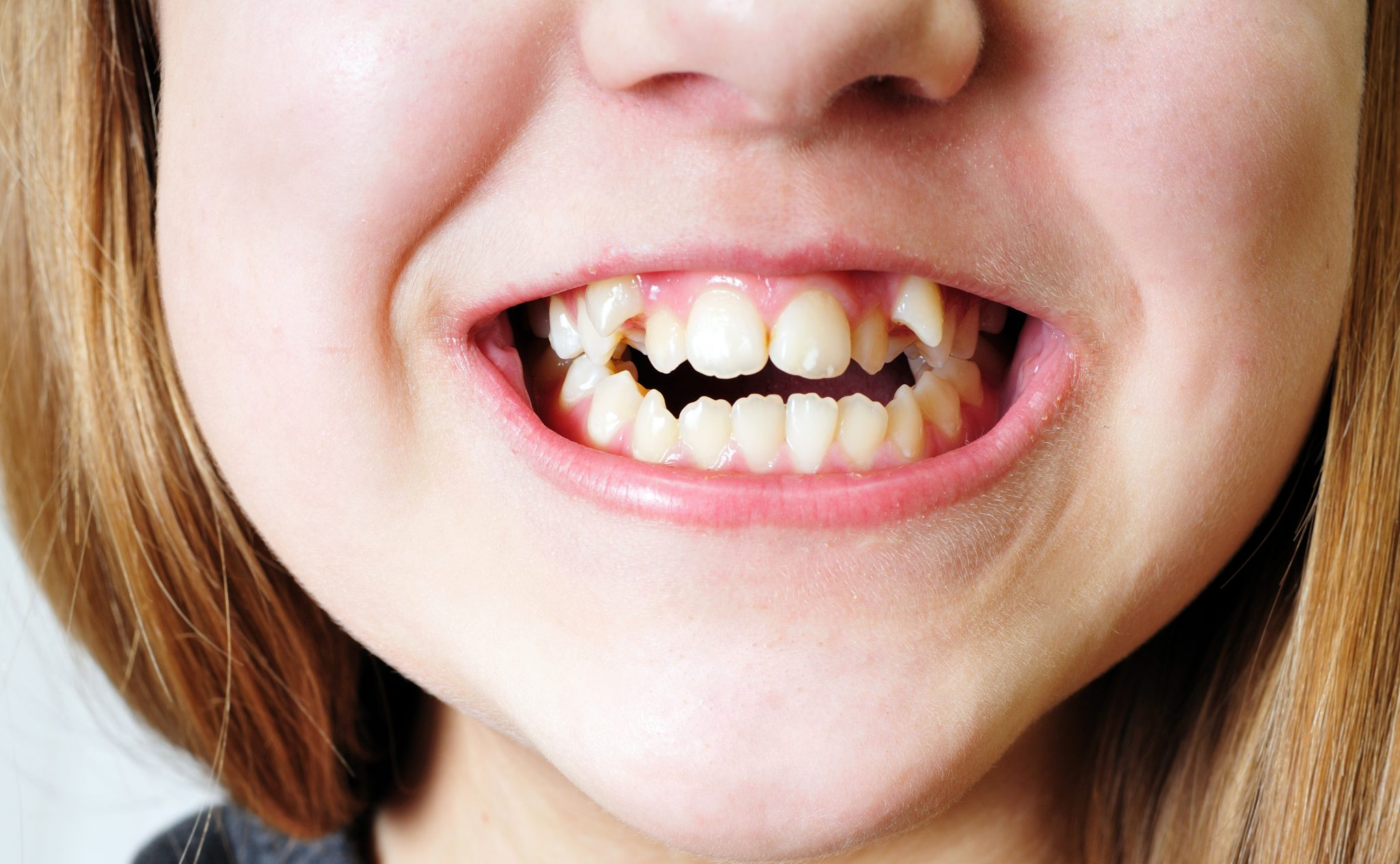 Find Out Now When Canine Tooth Extraction Is Required