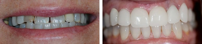CEREC Crowns and Teeth Whitening
