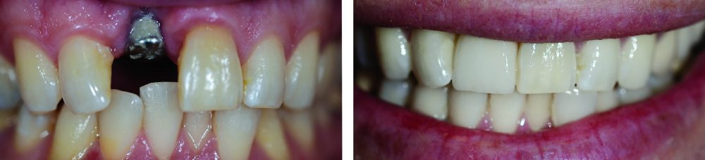 CERC Crown on Dental Implant with Professional Teeth Cleaning and Whitening.