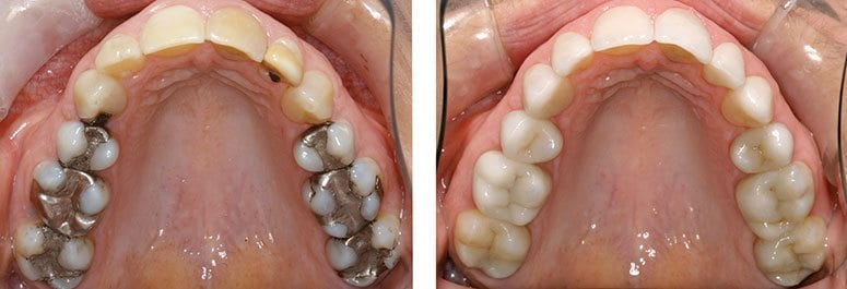 Replaced Amalgam and Decay with CEREC CRowns
