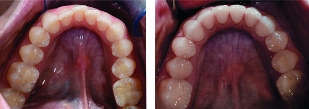 invisalign before and after bottom teeth crooked and corrected