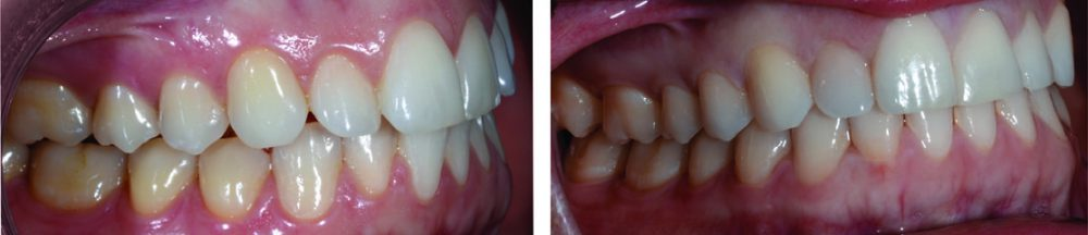 invisalign before and after side teeth crooked and spaced far apart