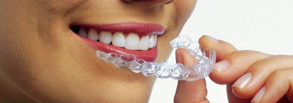 invisalign clear-aligners