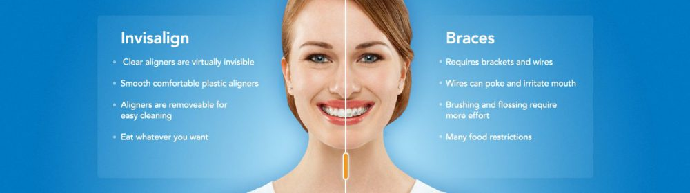 invisalign versus metal braces