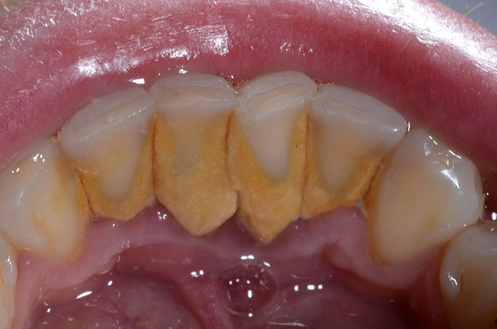 Periodontal Disease Treatment and Deep Teeth Cleaning Required for Hard Plaque Build Up