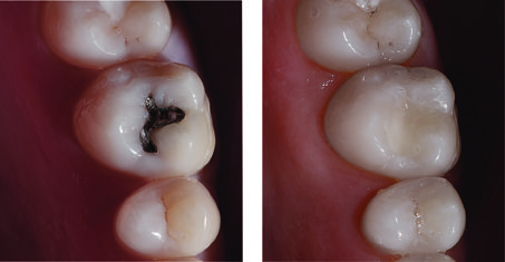 Replaced Amalgam with White Filling