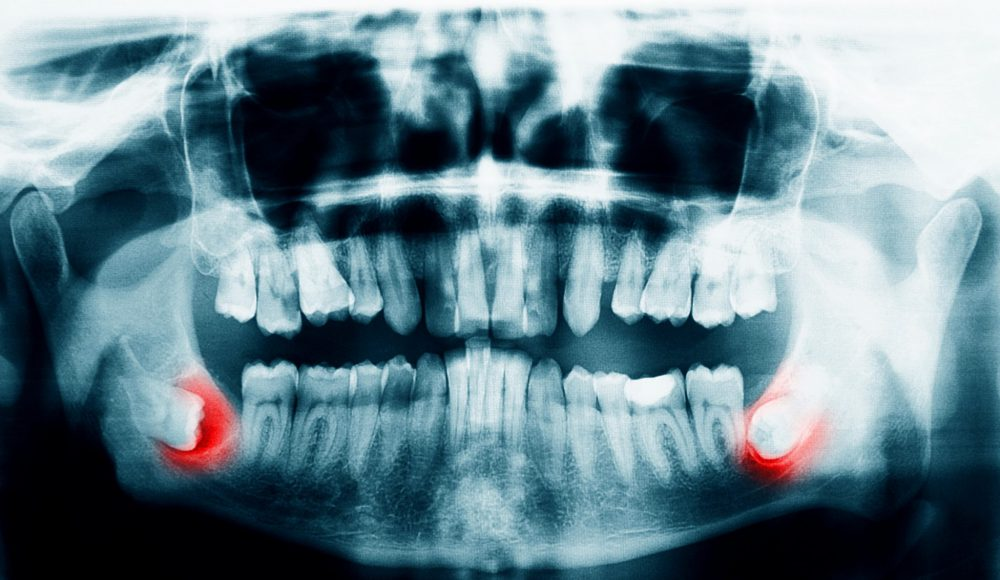 Dentist xrays and safety with radiation