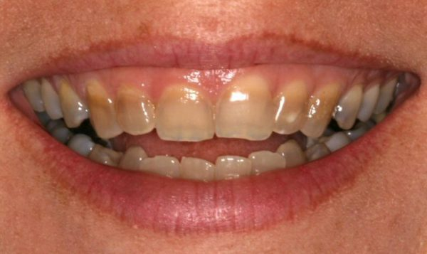 Tetracycline Stains Can be Corrected with CEREC Veneers