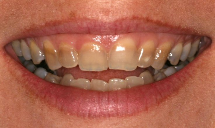 Treat Tetracycline Stains In One Visit With Cerec Veneers