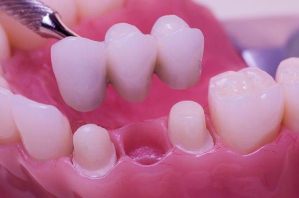 Three Unit Dental Bridge Example