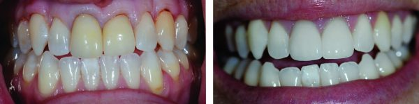 Two Front Teeth Veneers and Teeth Whitening to Remove Yellow Staining