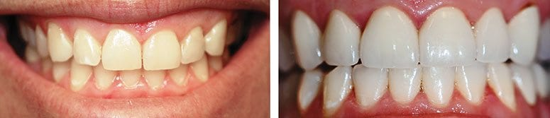 CEREC Veneers on Uppers and Lowers